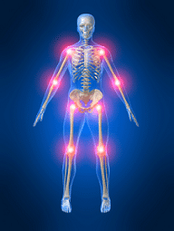 bromelaine arthrite